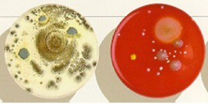 services_indoor_environments_components_of_IAQ_agar_plates_growth